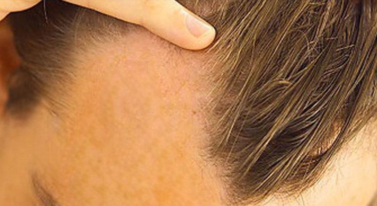 Queda de cabelo: saiba quando se preocupar